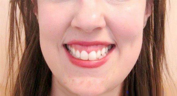 Tiêm botox chữa cười hở lợi