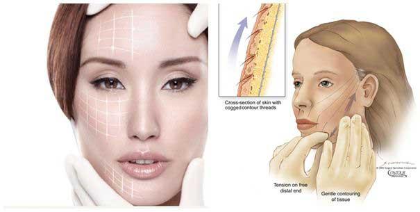 Phương pháp căng da mặt hiệu quả nhất