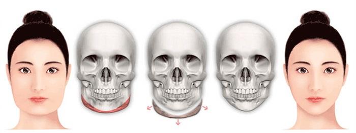 Phẫu thuật khuôn mặt không cân xứng
