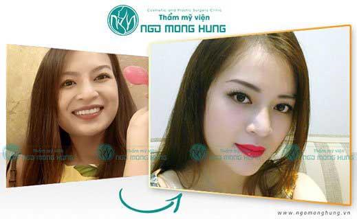 Hình ảnh trước và sau khi hạ gò má cao