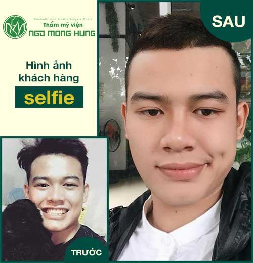 Phẫu thuật gương mặt cho nam giới