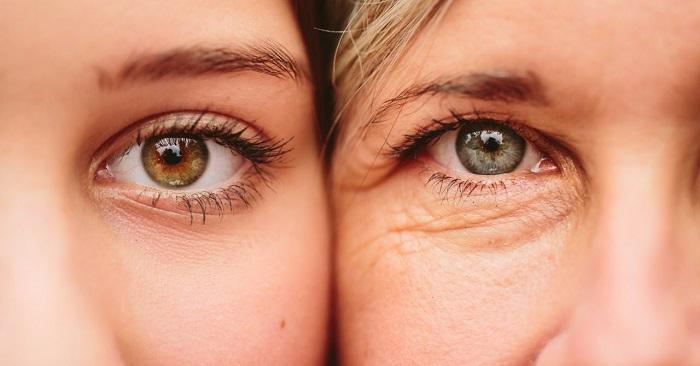 Làm gì để xóa nếp nhăn ở mắt