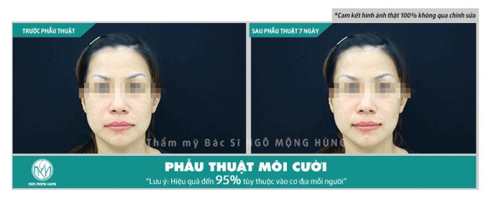Phẫu thuật môi cười Hàn Quốc