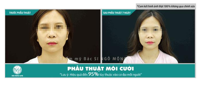 Phẫu thuật thẩm mỹ môi ở Hà Nội