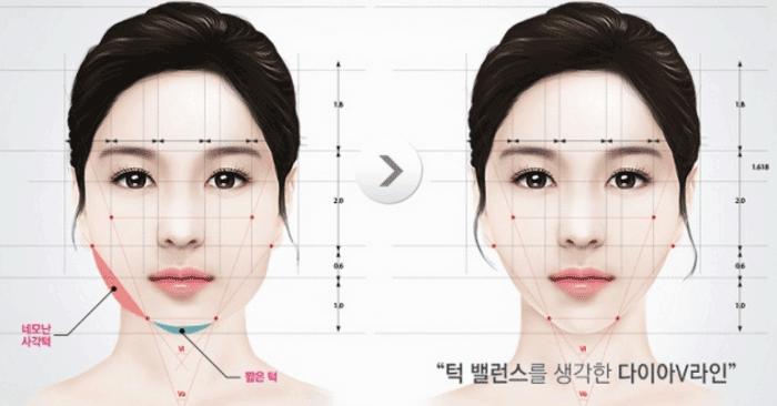 Phẫu thuật khuôn mặt trái xoan