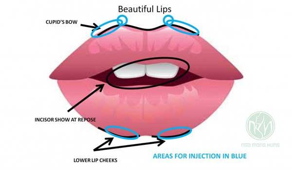 Clip phẫu thuật môi trái tim