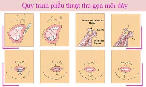 Có nên phẫu thuật môi dày