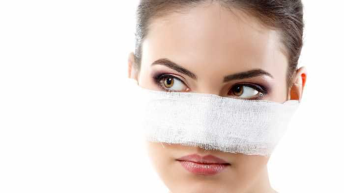 Nâng mũi và biến chứng