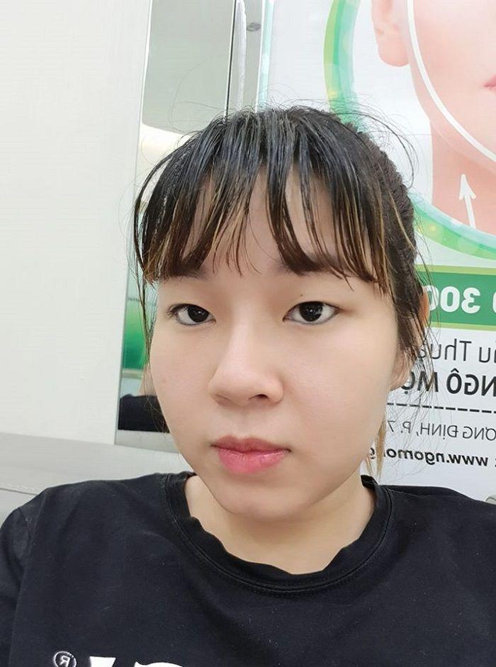 4. Phẫu thuật có điểm dừng, cô gái nhận được thành quả xứng đáng sau khi cắt mí mắt