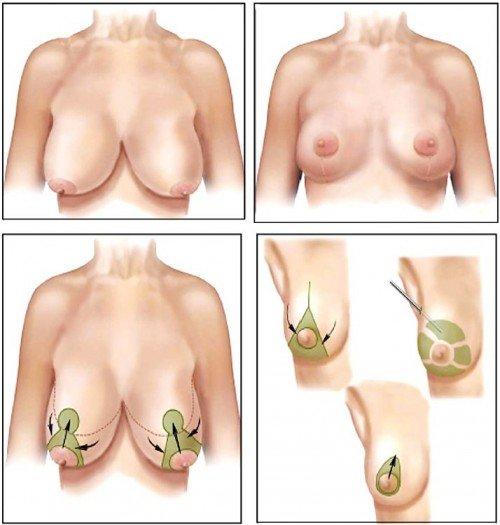 Cách trị ngực chảy xệ