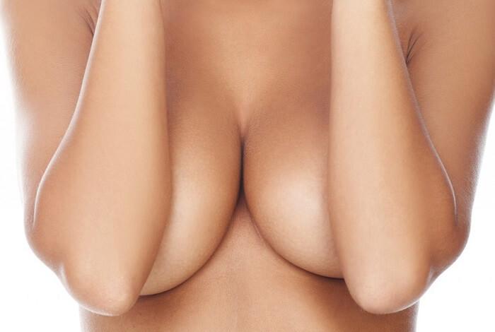 Cắt da thừa ở ngực