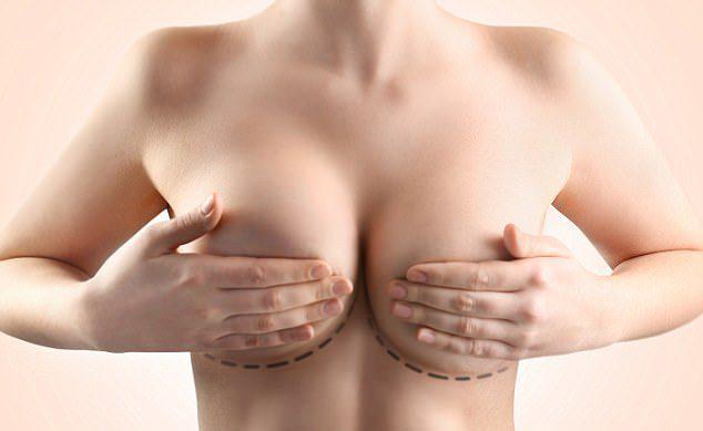Chi phí tháo túi ngực
