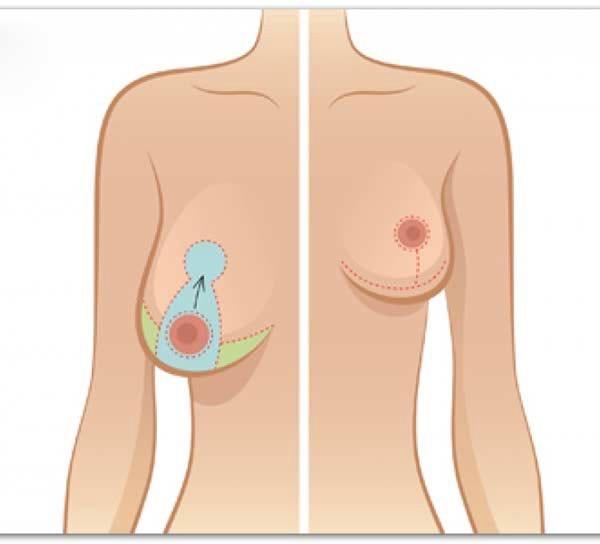 Giá nâng ngực bằng chỉ collagen