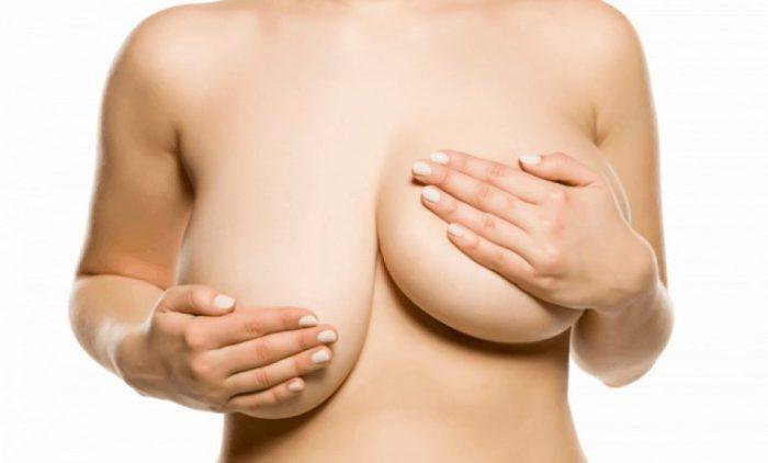 Phục hồi ngực chảy xệ sau sinh