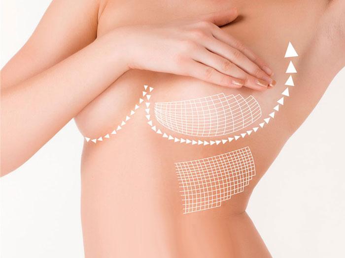 Nâng ngực nội soi có ảnh hưởng gì