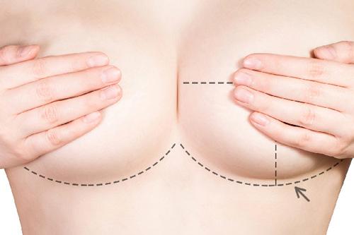 Cách nâng ngực xệ