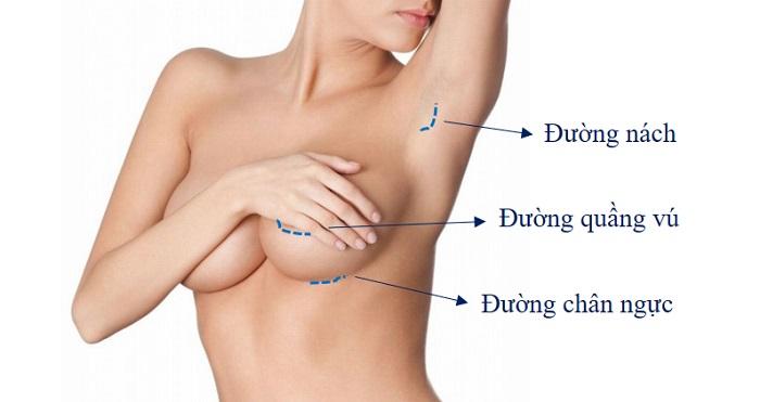 Nâng ngực bằng Aqualifit Filler