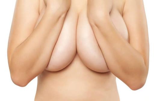 Ngực phì đại
