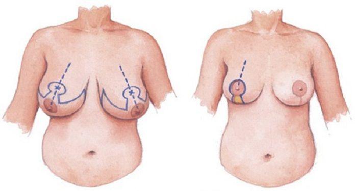 Khắc phục ngực chảy xệ sau sinh