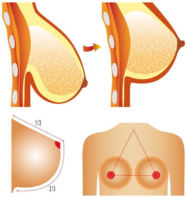 Cải thiện ngực chảy xệ