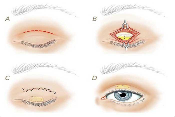Cắt da thừa mí mắt