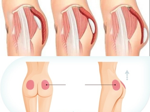 Quần độn mông nữ