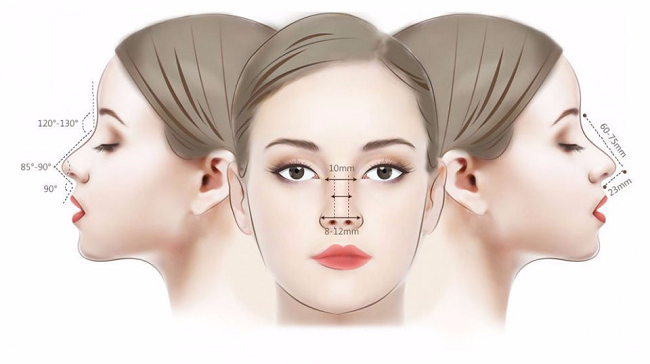 Nâng mũi L Line