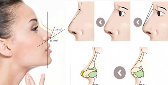 Nâng mũi sụn sườn
