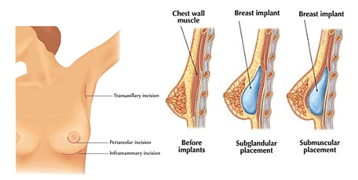 Phẫu thuật ngực có gây ung thư